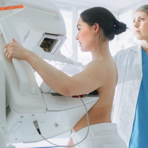 Lo que debes saber sobre hacerte una mamografía
