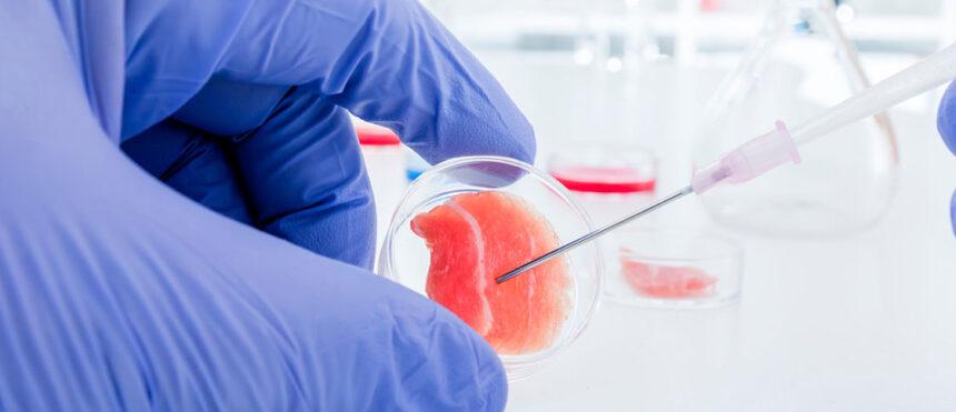 Trasplante de células madre: Proceso y recuperación